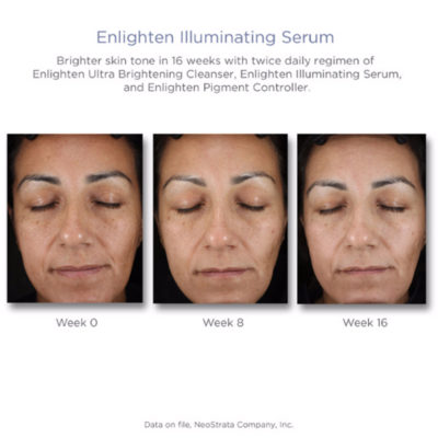 Enlighten Suero Facial